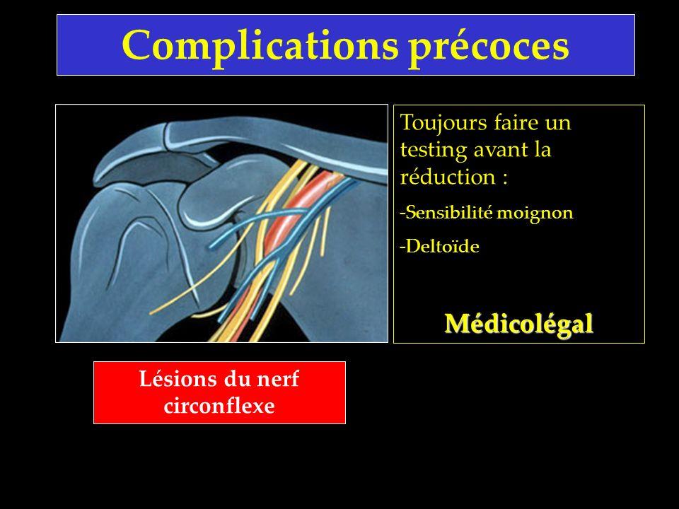 Complications précoces Lésions du nerf circonflexe Toujours faire un testing avant la réduction : -Sensibilité moignon -DeltoïdeMédicolégal