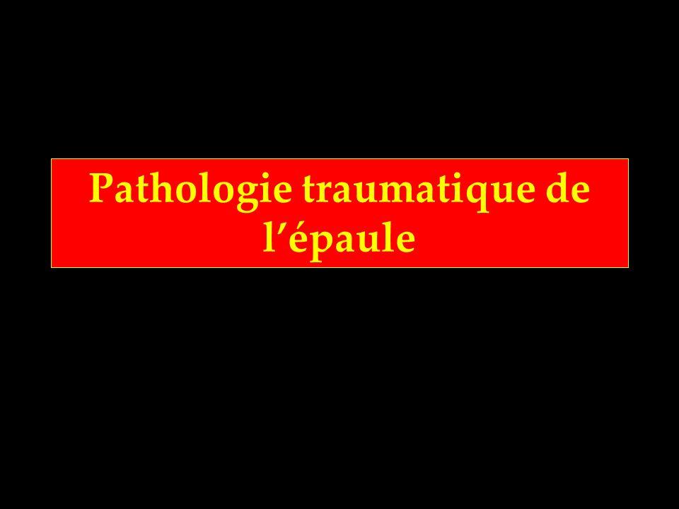 Pathologie traumatique de lépaule