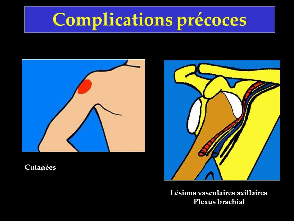 Complications précoces Lésions vasculaires axillaires Plexus brachial Cutanées