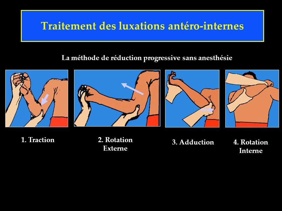La méthode de réduction progressive sans anesthésie Traitement des luxations antéro-internes 1. Traction2. Rotation Externe 3. Adduction4. Rotation In