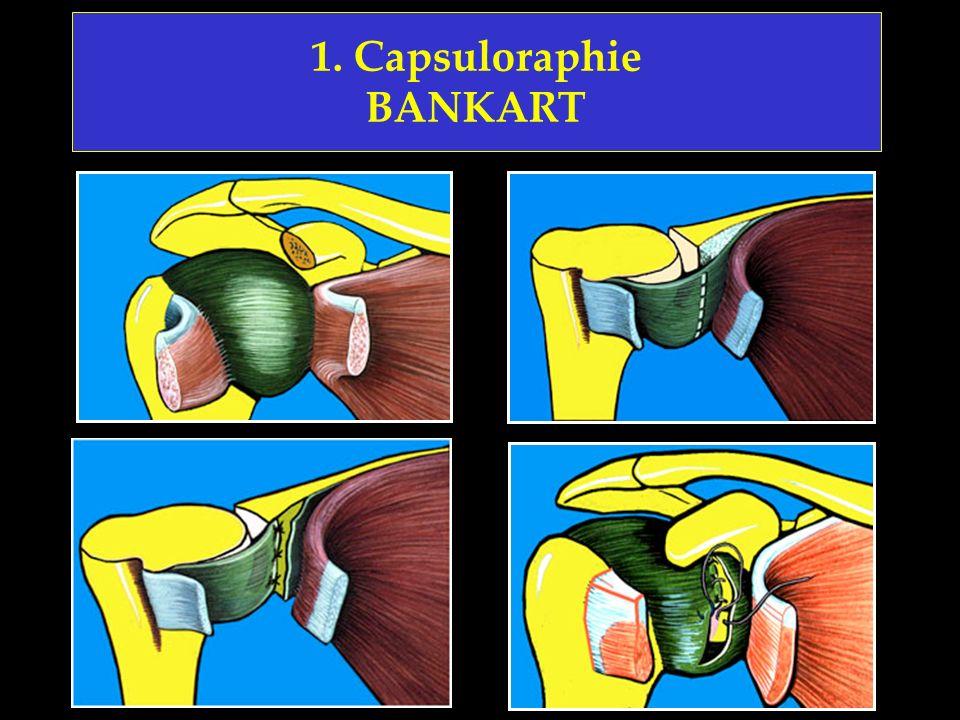 1. Capsuloraphie BANKART