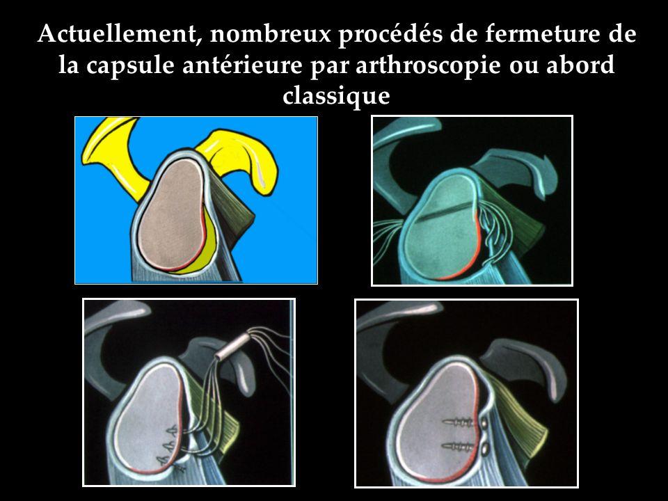 Actuellement, nombreux procédés de fermeture de la capsule antérieure par arthroscopie ou abord classique