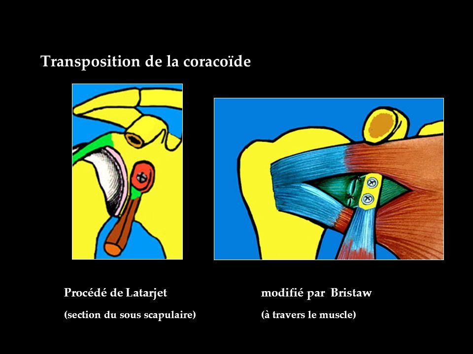 Transposition de la coracoïde Procédé de Latarjet modifié par Bristaw (section du sous scapulaire) (à travers le muscle)