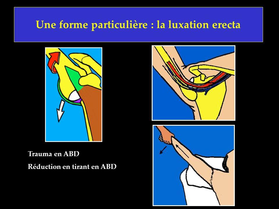 Une forme particulière : la luxation erecta Trauma en ABD Réduction en tirant en ABD