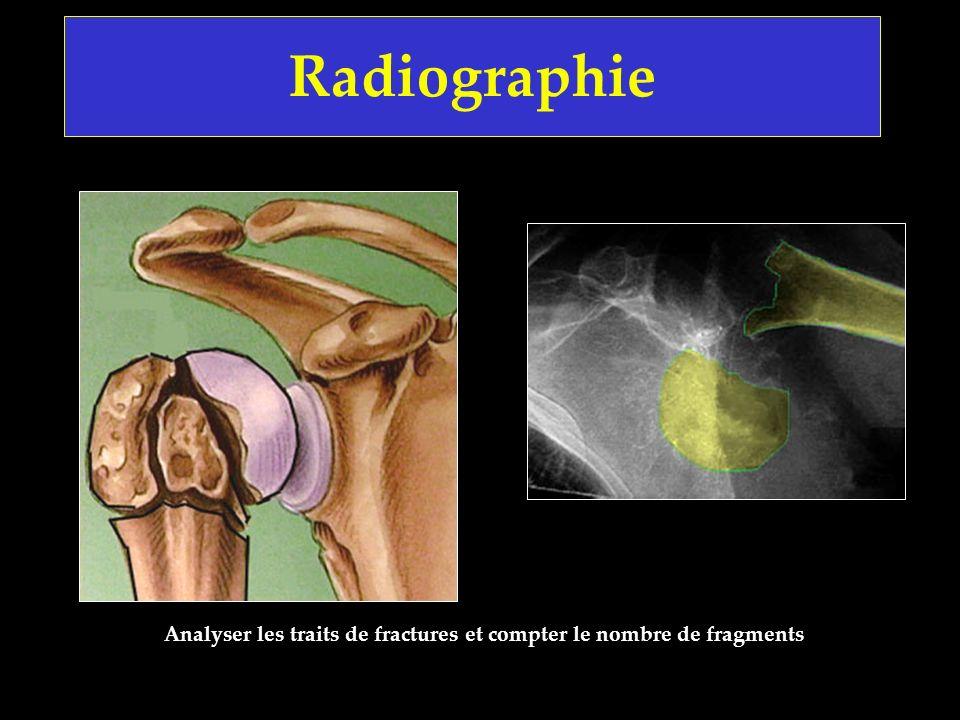 Radiographie Analyser les traits de fractures et compter le nombre de fragments