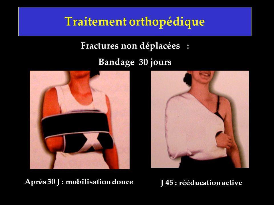 Fractures non déplacées : Bandage 30 jours Après 30 J : mobilisation douce Traitement orthopédique J 45 : rééducation active