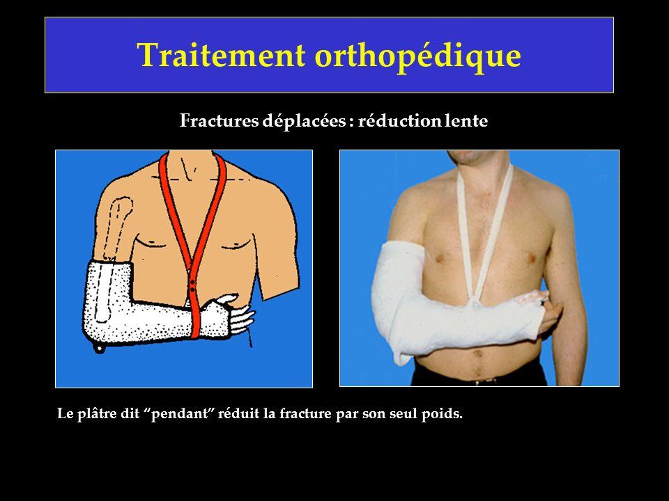 Traitement orthopédique Fractures déplacées : réduction lente Le plâtre dit pendant réduit la fracture par son seul poids.