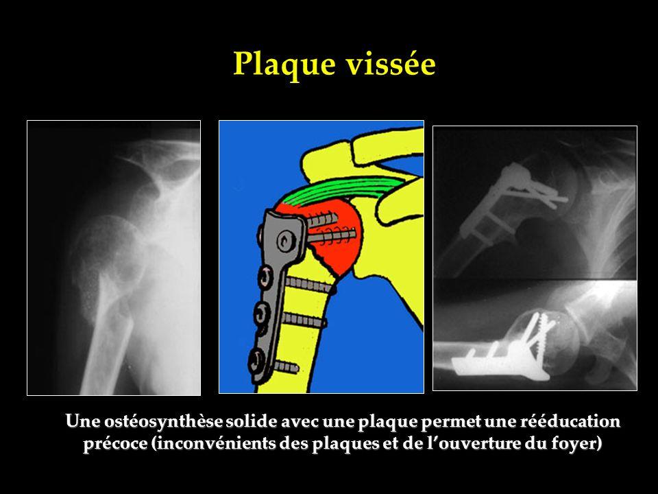 Plaque vissée Une ostéosynthèse solide avec une plaque permet une rééducation précoce (inconvénients des plaques et de louverture du foyer)