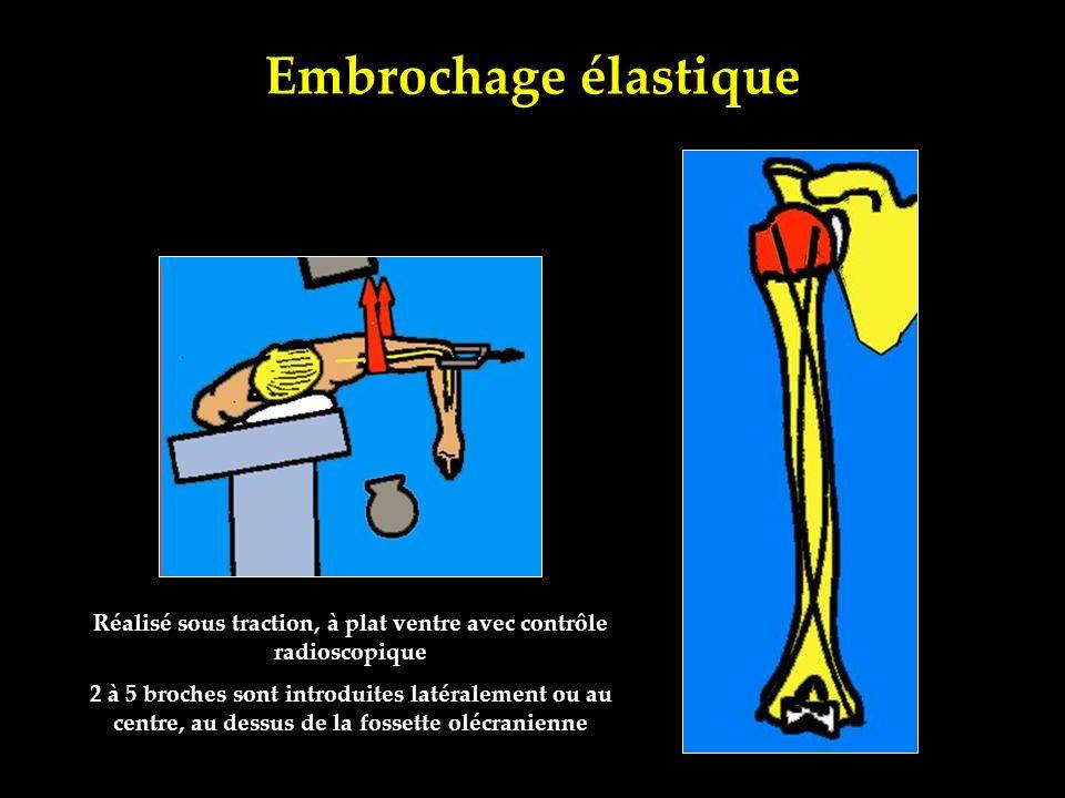 Embrochage élastique Réalisé sous traction, à plat ventre avec contrôle radioscopique 2 à 5 broches sont introduites latéralement ou au centre, au des