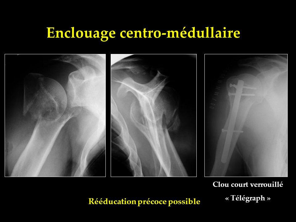 Enclouage centro-médullaire Clou court verrouillé « Télégraph » Rééducation précoce possible