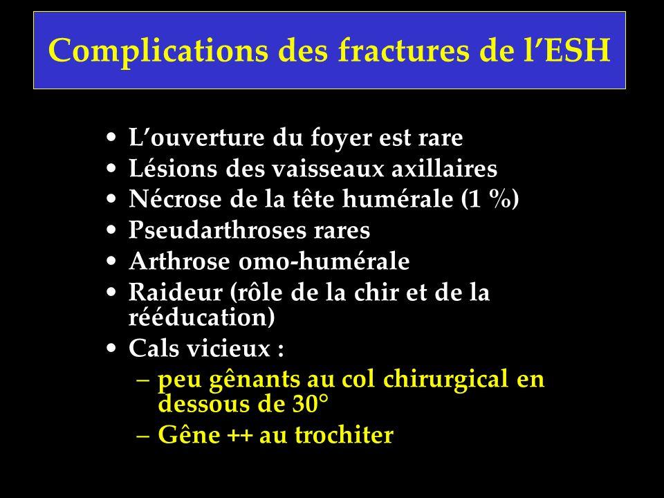 Complications des fractures de lESH Louverture du foyer est rare Lésions des vaisseaux axillaires Nécrose de la tête humérale (1 %) Pseudarthroses rar