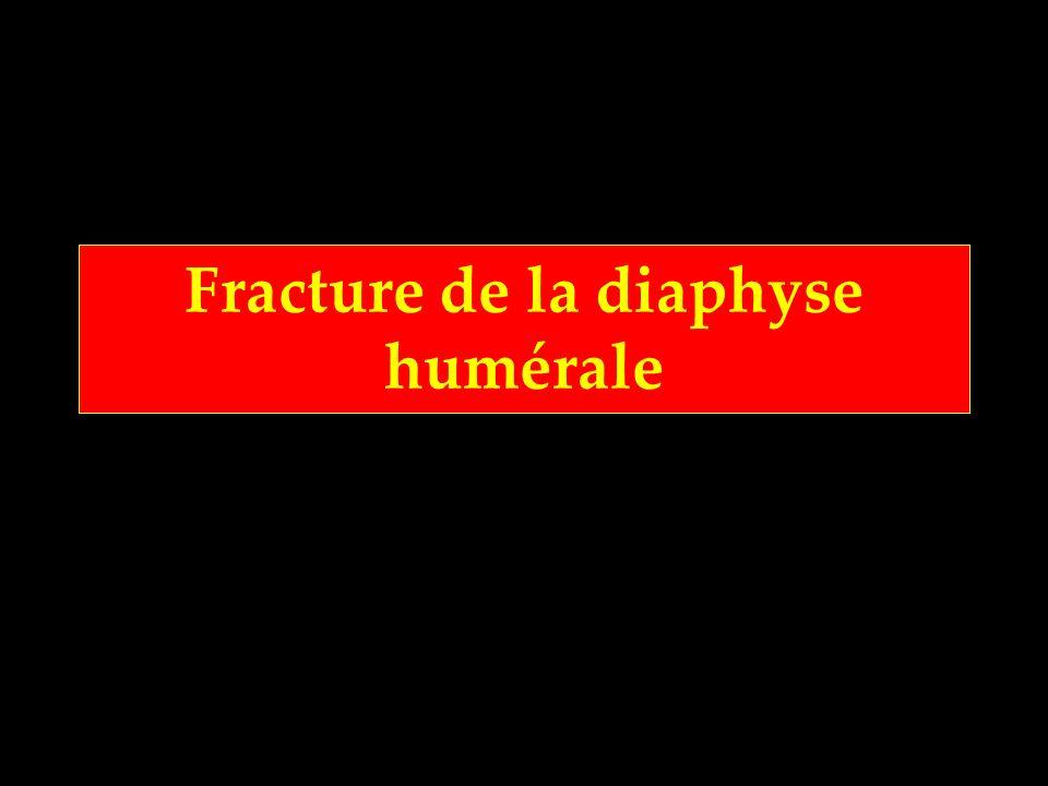 Fracture de la diaphyse humérale