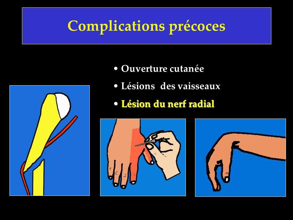 Complications précoces Ouverture cutanée Lésions des vaisseaux Lésion du nerf radial Lésion du nerf radial