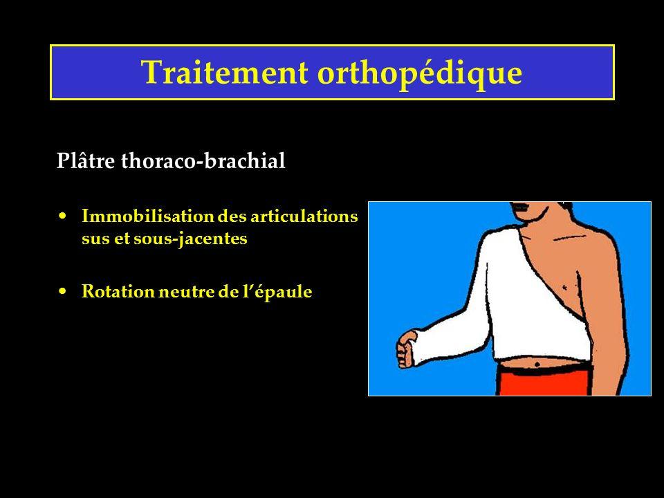 Traitement orthopédique Plâtre thoraco-brachial Immobilisation des articulations sus et sous-jacentes Rotation neutre de lépaule