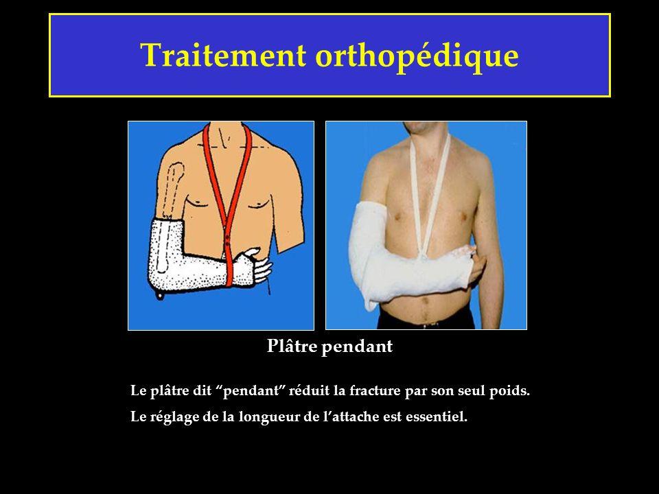 Traitement orthopédique Le plâtre dit pendant réduit la fracture par son seul poids. Le réglage de la longueur de lattache est essentiel. Plâtre penda