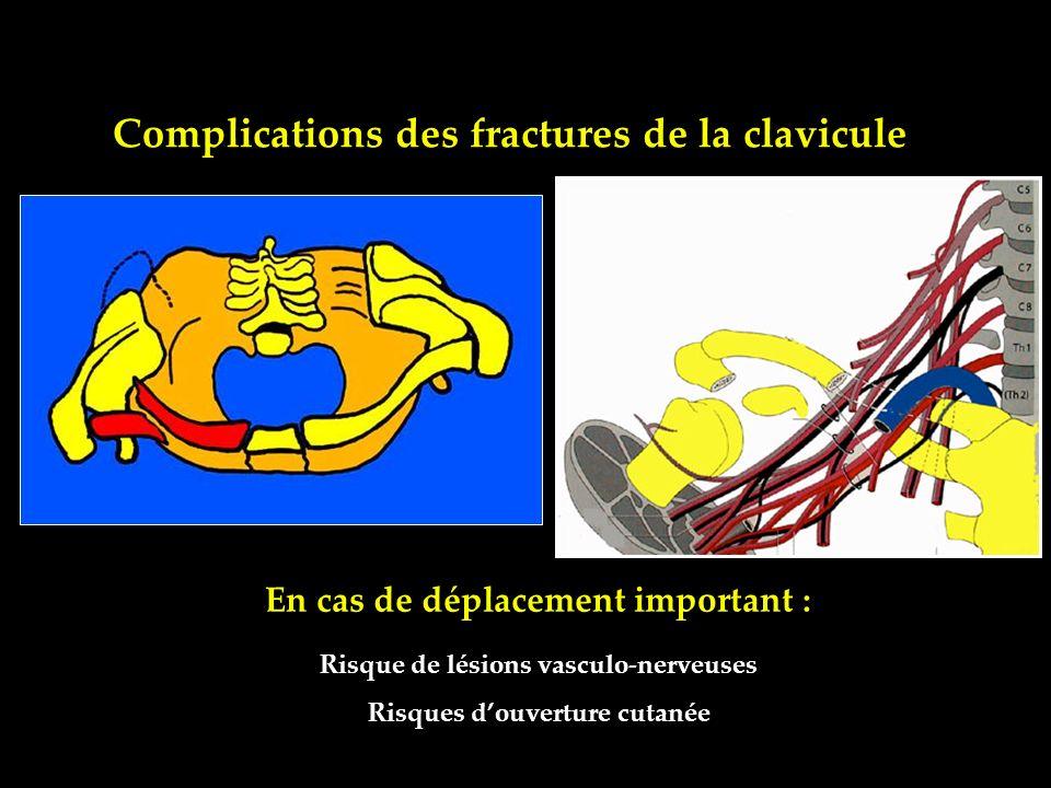 Complications des fractures de la clavicule Risque de lésions vasculo-nerveuses Risques douverture cutanée En cas de déplacement important :