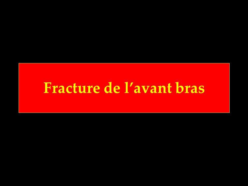 Fracture de lavant bras