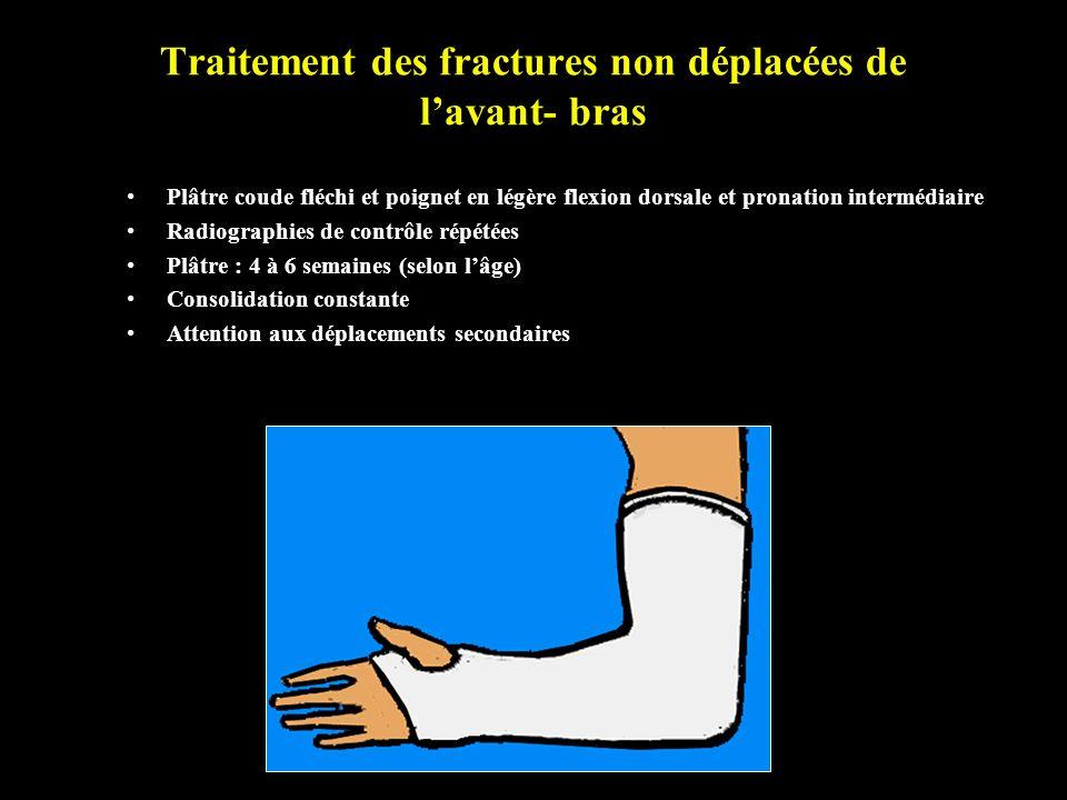 Traitement des fractures non déplacées de lavant- bras Plâtre coude fléchi et poignet en légère flexion dorsale et pronation intermédiaire Radiographi
