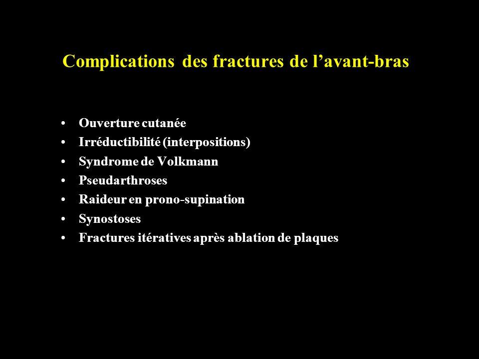 Complications des fractures de lavant-bras Ouverture cutanée Irréductibilité (interpositions) Syndrome de Volkmann Pseudarthroses Raideur en prono-sup