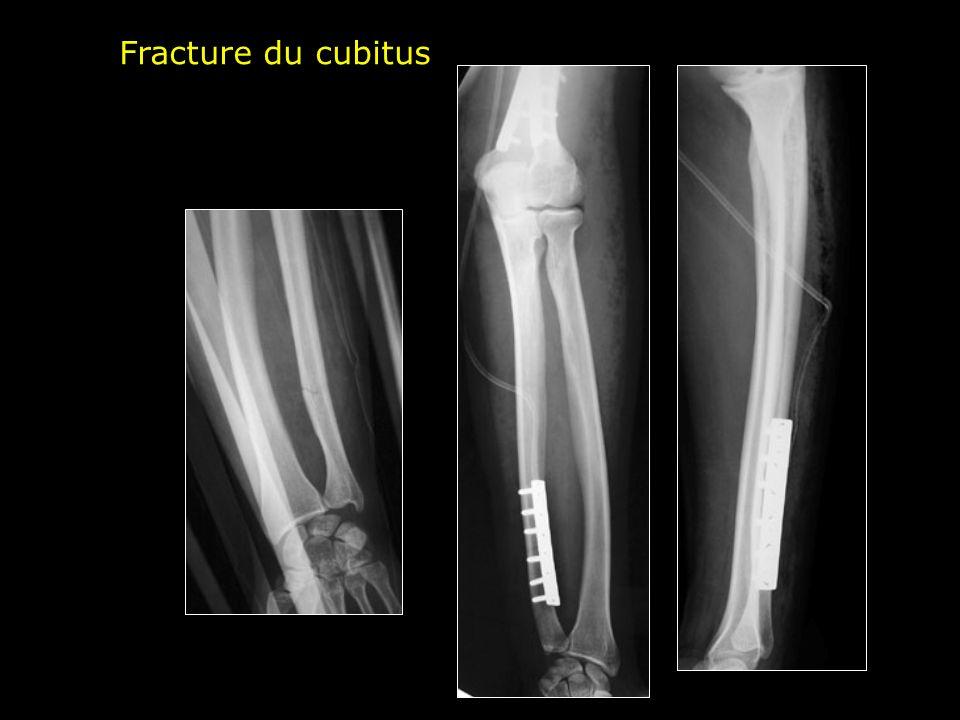 Fracture du cubitus