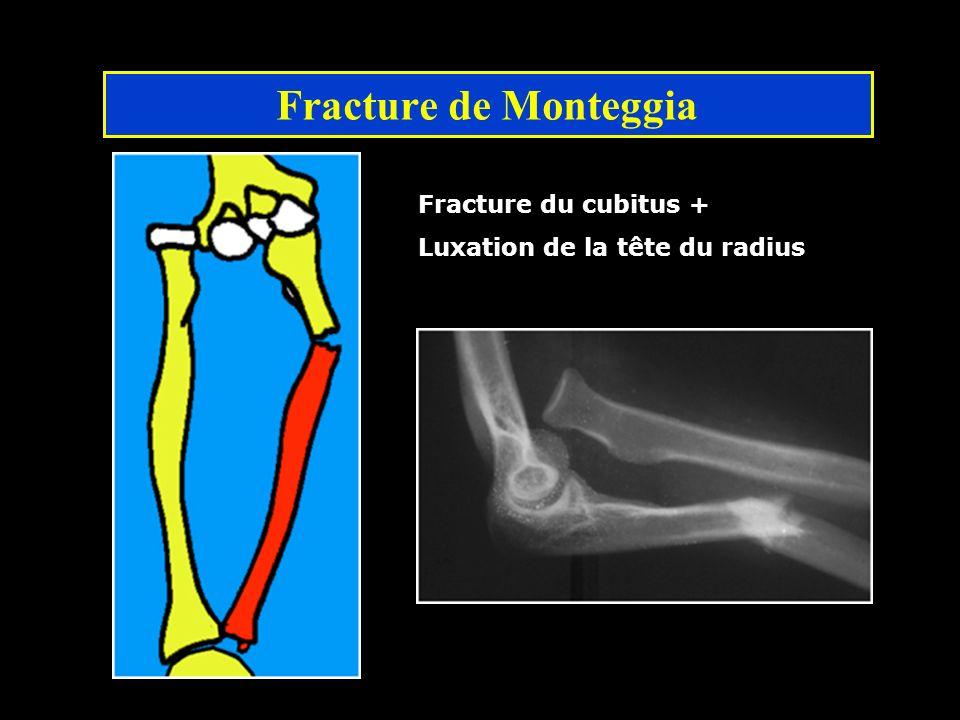Fracture de Monteggia Fracture du cubitus + Luxation de la tête du radius