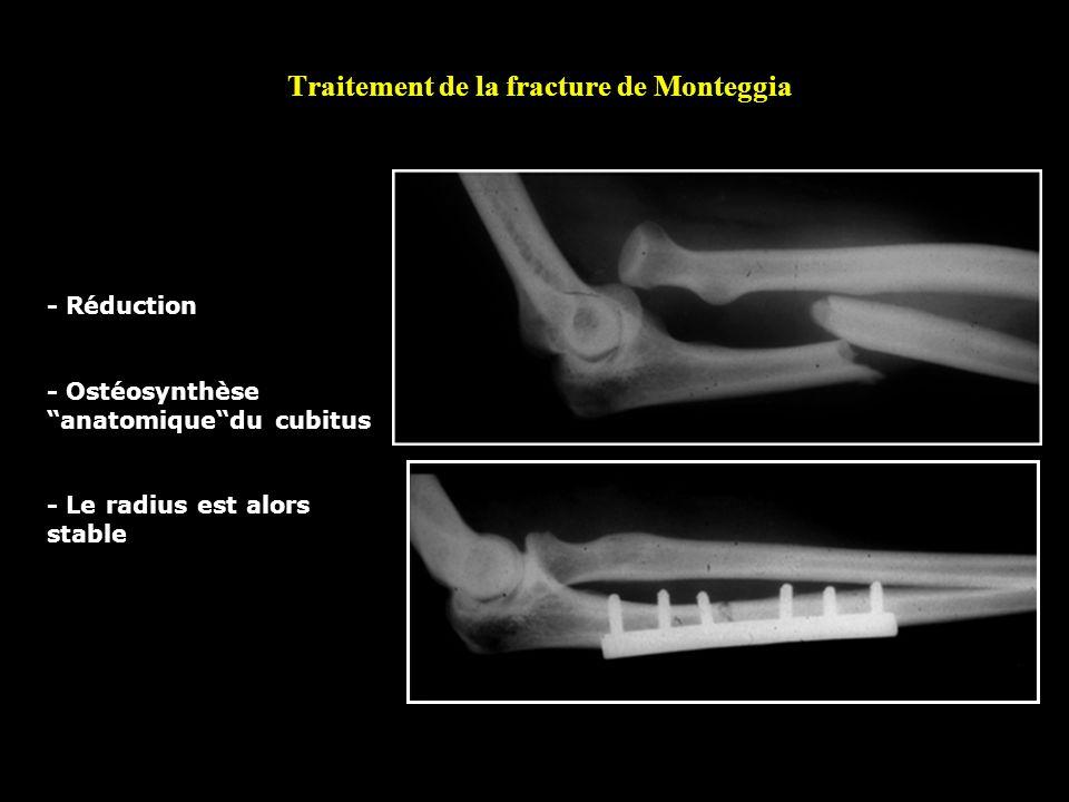 Traitement de la fracture de Monteggia - Réduction - Ostéosynthèse anatomiquedu cubitus - Le radius est alors stable