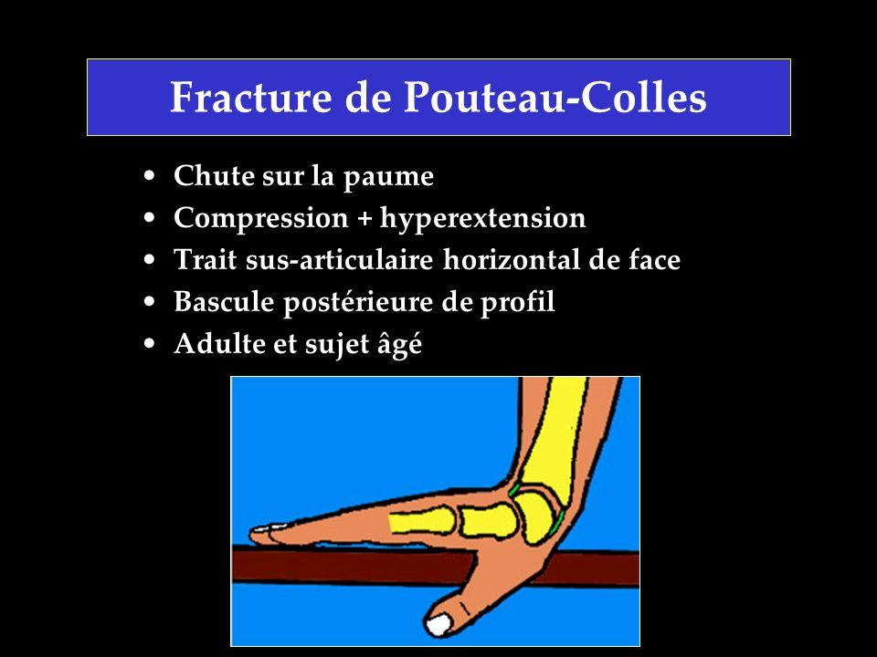Fracture de Pouteau-Colles Chute sur la paume Compression + hyperextension Trait sus-articulaire horizontal de face Bascule postérieure de profil Adul