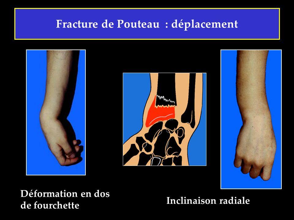 Fracture de Pouteau : déplacement Déformation en dos de fourchette Inclinaison radiale