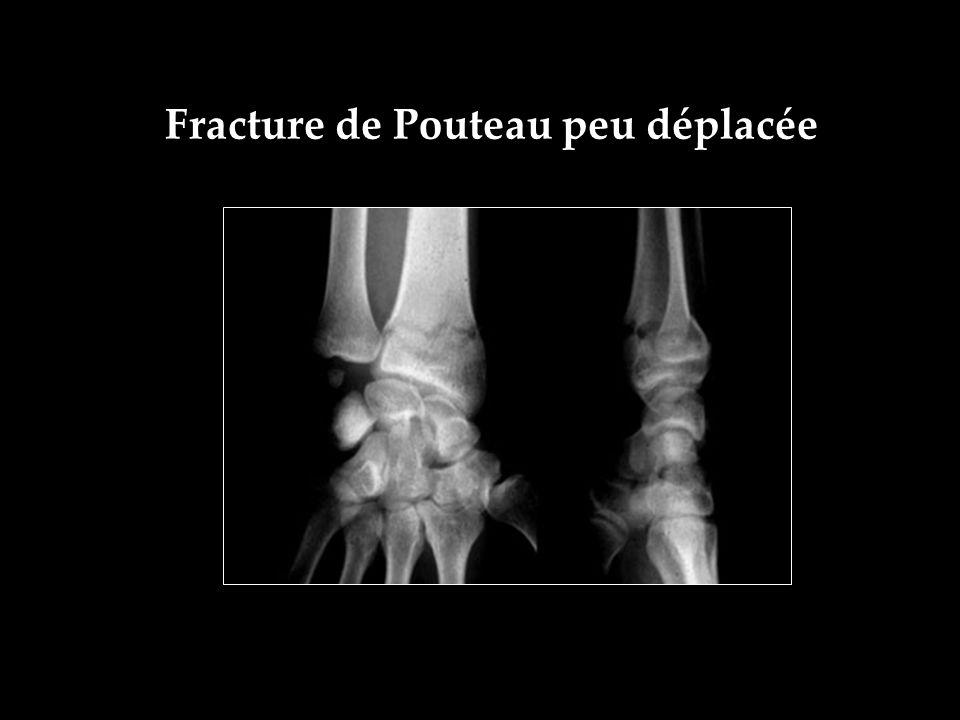 Fracture de Pouteau peu déplacée