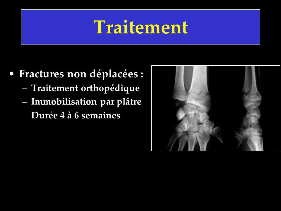 Traitement Fractures non déplacées : –Traitement orthopédique –Immobilisation par plâtre –Durée 4 à 6 semaines