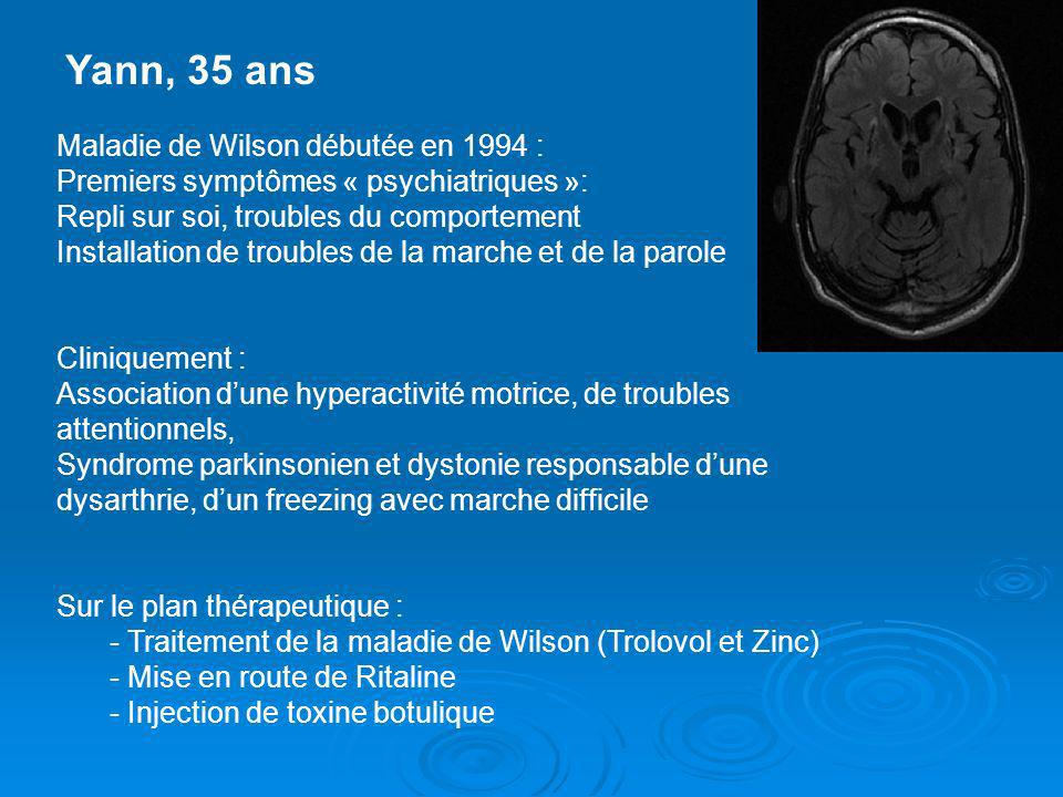 Yann, 35 ans Maladie de Wilson débutée en 1994 : Premiers symptômes « psychiatriques »: Repli sur soi, troubles du comportement Installation de troubl