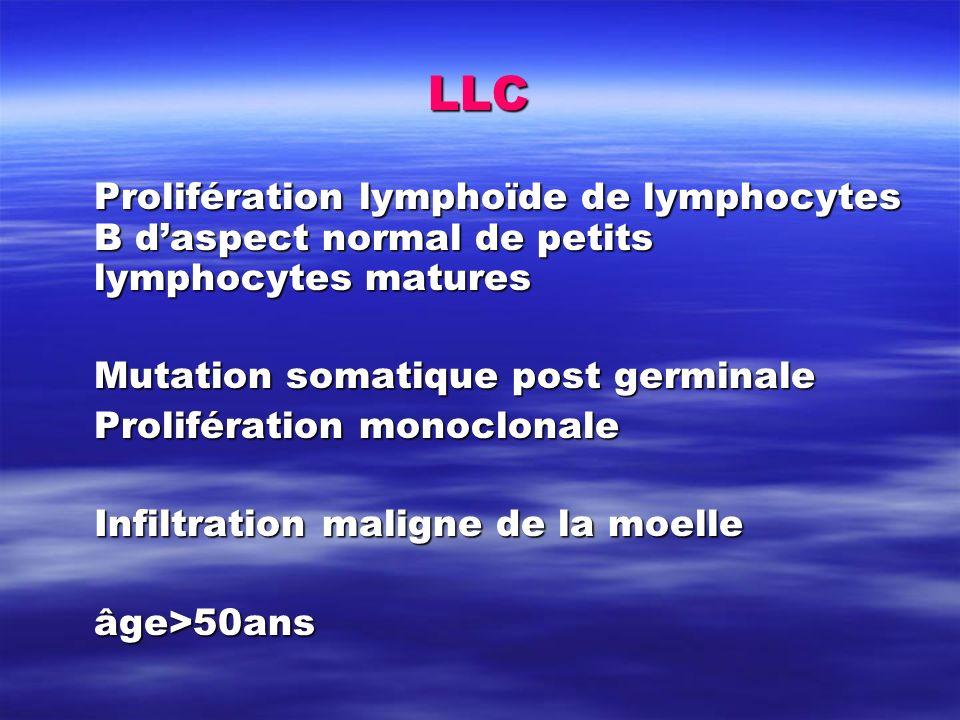 LLC Prolifération lymphoïde de lymphocytes B daspect normal de petits lymphocytes matures Mutation somatique post germinale Prolifération monoclonale