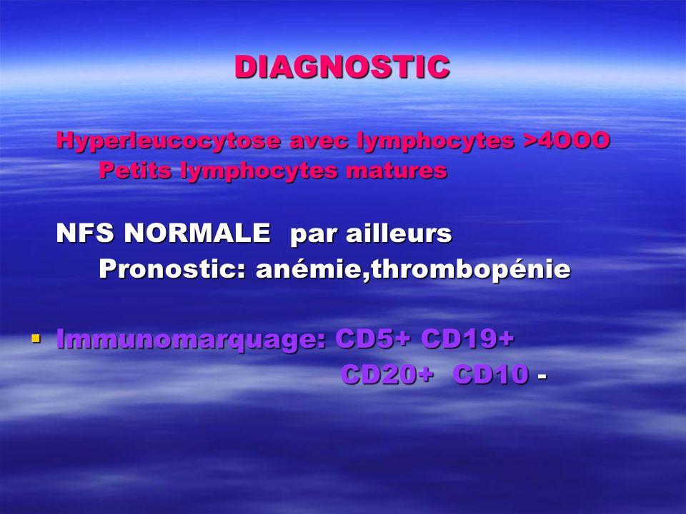 DIAGNOSTIC Hyperleucocytose avec lymphocytes >4OOO Petits lymphocytes matures NFS NORMALE par ailleurs Pronostic: anémie,thrombopénie Immunomarquage: