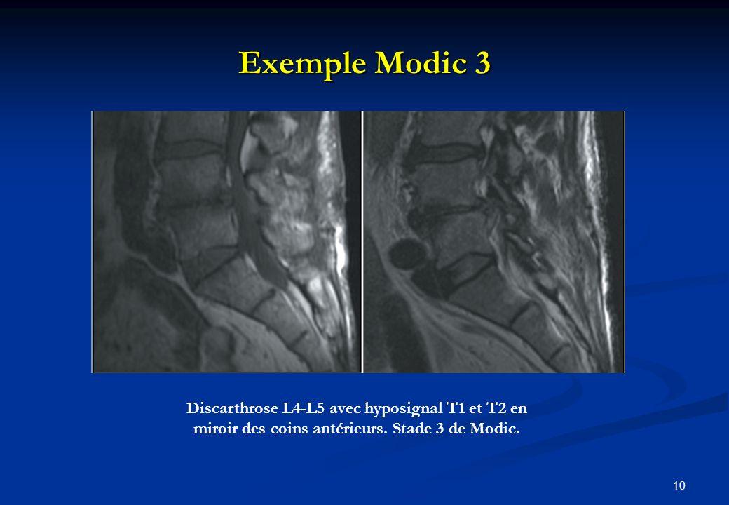 Exemple Modic 3 10 Discarthrose L4-L5 avec hyposignal T1 et T2 en miroir des coins antérieurs. Stade 3 de Modic.