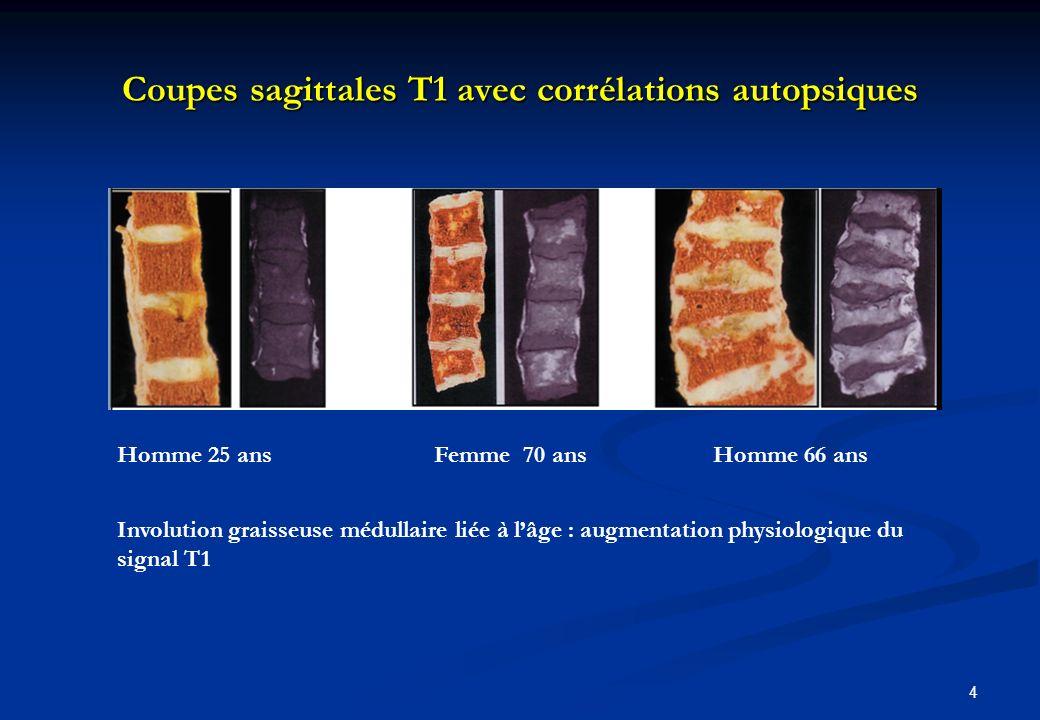 Coupes sagittales T1 avec corrélations autopsiques 4 Homme 25 ans Femme 70 ans Homme 66 ans Involution graisseuse médullaire liée à lâge : augmentatio