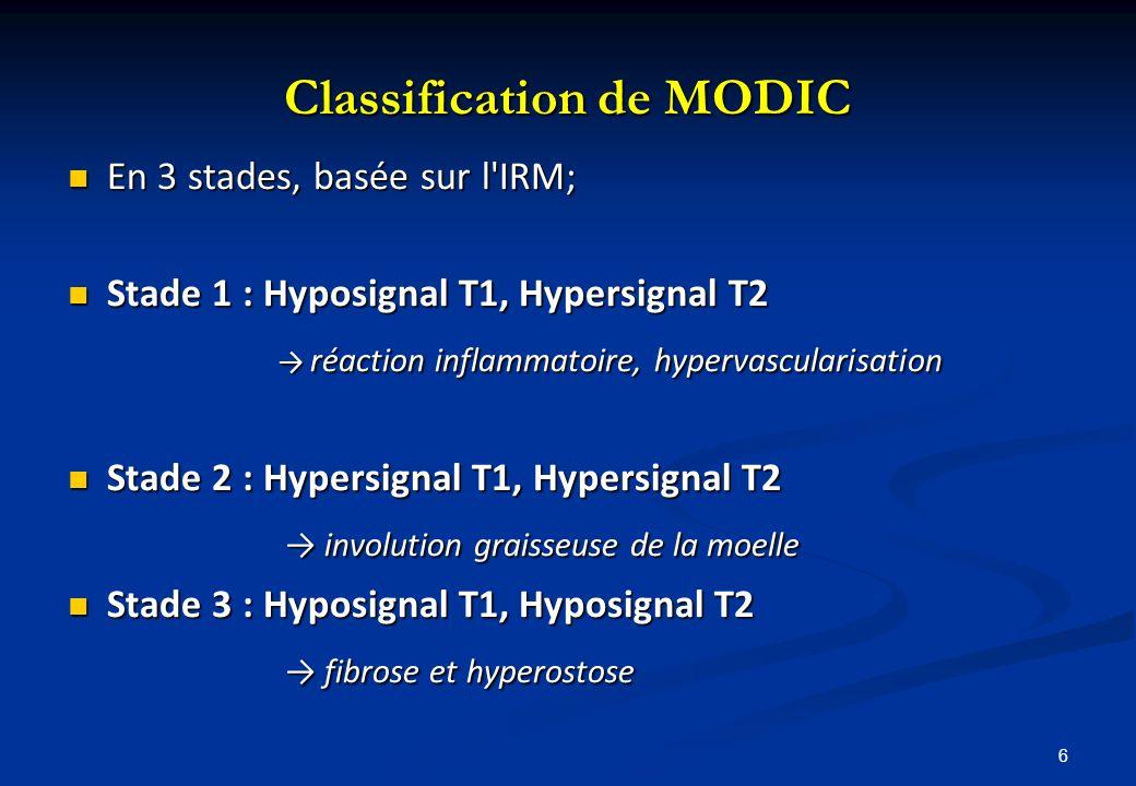 6 Classification de MODIC En 3 stades, basée sur l'IRM; En 3 stades, basée sur l'IRM; Stade 1 : Hyposignal T1, Hypersignal T2 Stade 1 : Hyposignal T1,