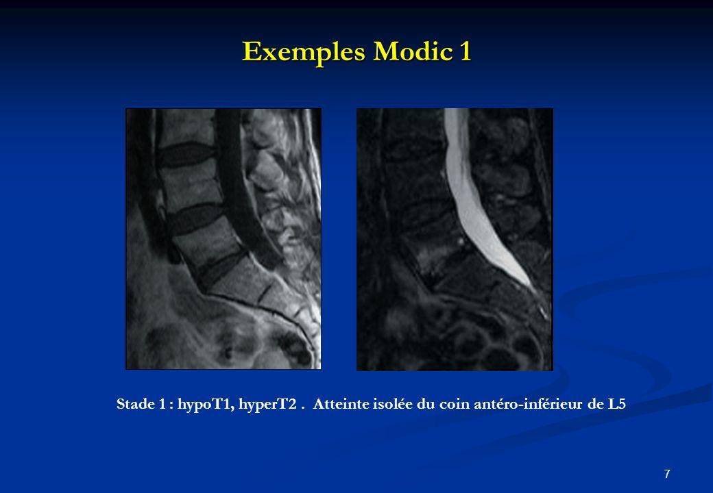 Exemples Modic 1 7 Stade 1 : hypoT1, hyperT2. Atteinte isolée du coin antéro-inférieur de L5