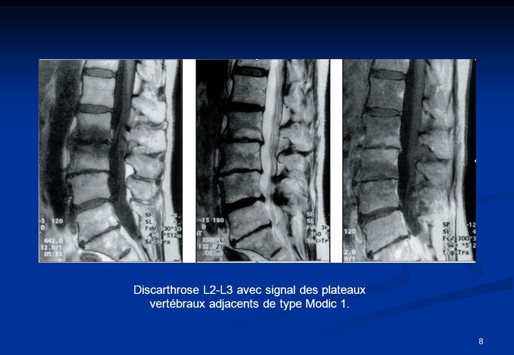 19 Évolution post-thérapeutique : Évolution post-thérapeutique : - Etude Vital et coll.