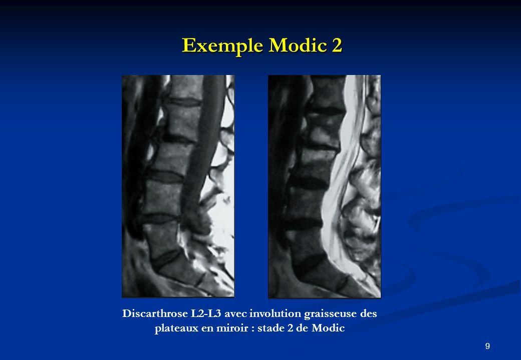 Exemple Modic 3 10 Discarthrose L4-L5 avec hyposignal T1 et T2 en miroir des coins antérieurs.