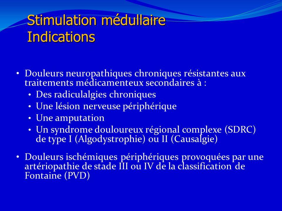 21/02/201432 Stimulation médullaire Indications Douleurs neuropathiques chroniques résistantes aux traitements médicamenteux secondaires à : Des radic