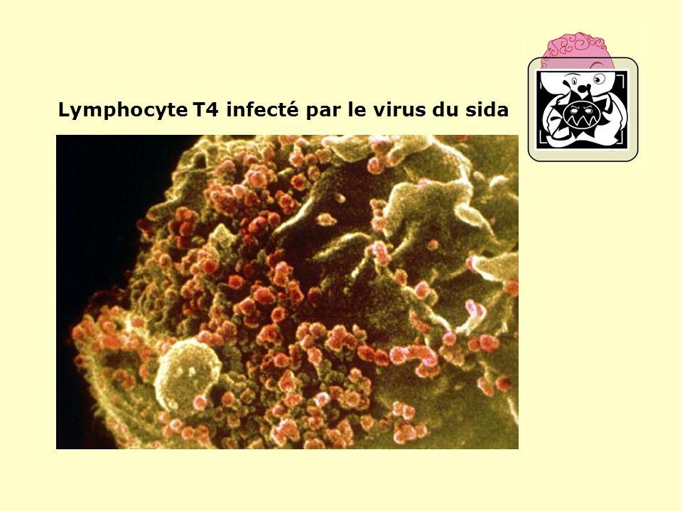 Lymphocyte T4 infecté par le virus du sida