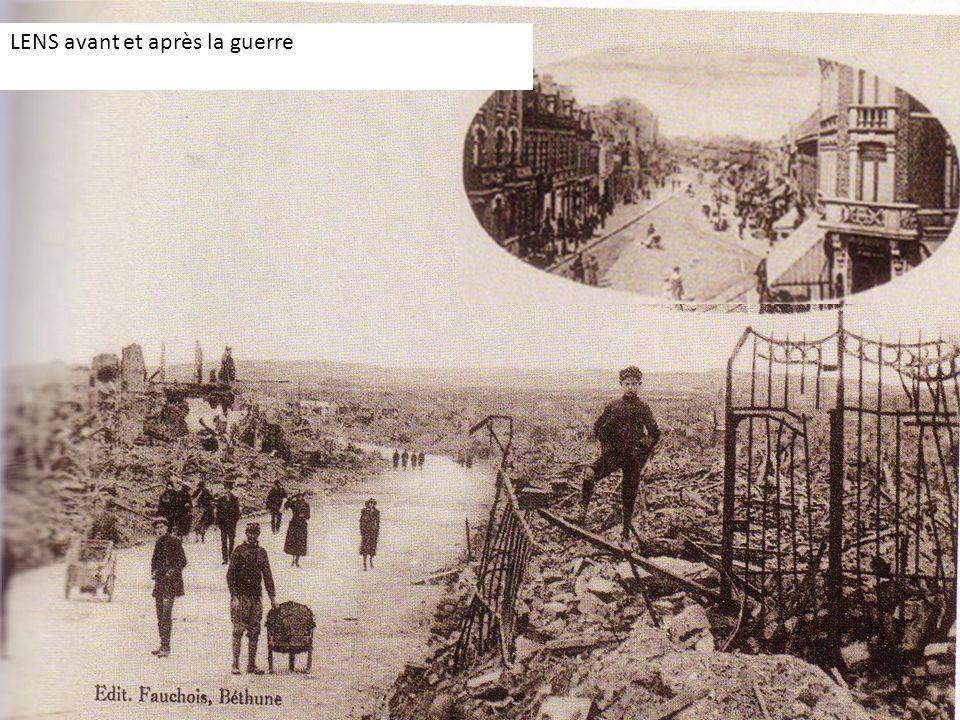LENS avant et après la guerre