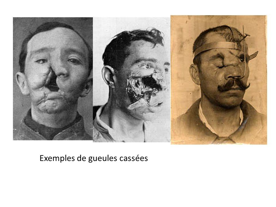 Exemples de gueules cassées