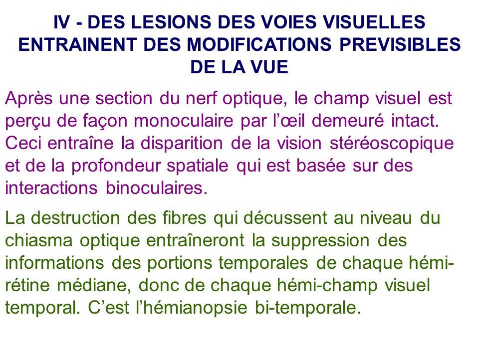 IV - DES LESIONS DES VOIES VISUELLES ENTRAINENT DES MODIFICATIONS PREVISIBLES DE LA VUE Après une section du nerf optique, le champ visuel est perçu d