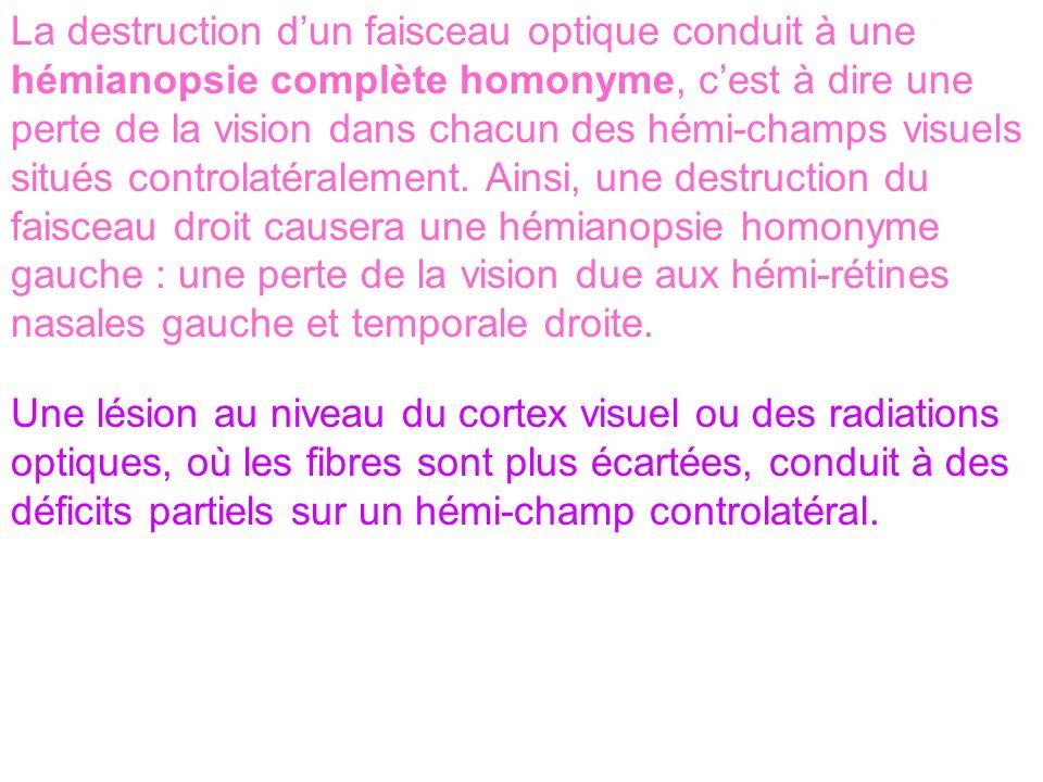 La destruction dun faisceau optique conduit à une hémianopsie complète homonyme, cest à dire une perte de la vision dans chacun des hémi-champs visuel