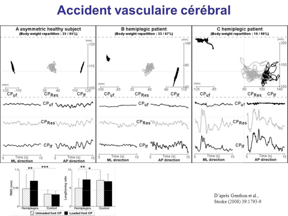Accident vasculaire cérébral Daprès Genthon et al., Stroke (2008) 39:1793-9