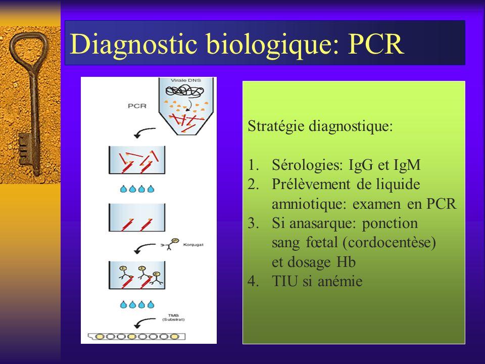 Diagnostic biologique: PCR Stratégie diagnostique: 1.Sérologies: IgG et IgM 2.Prélèvement de liquide amniotique: examen en PCR 3.Si anasarque: ponctio