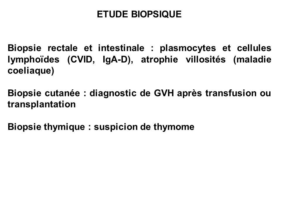 ETUDE BIOPSIQUE Biopsie rectale et intestinale : plasmocytes et cellules lymphoïdes (CVID, IgA-D), atrophie villosités (maladie coeliaque) Biopsie cut