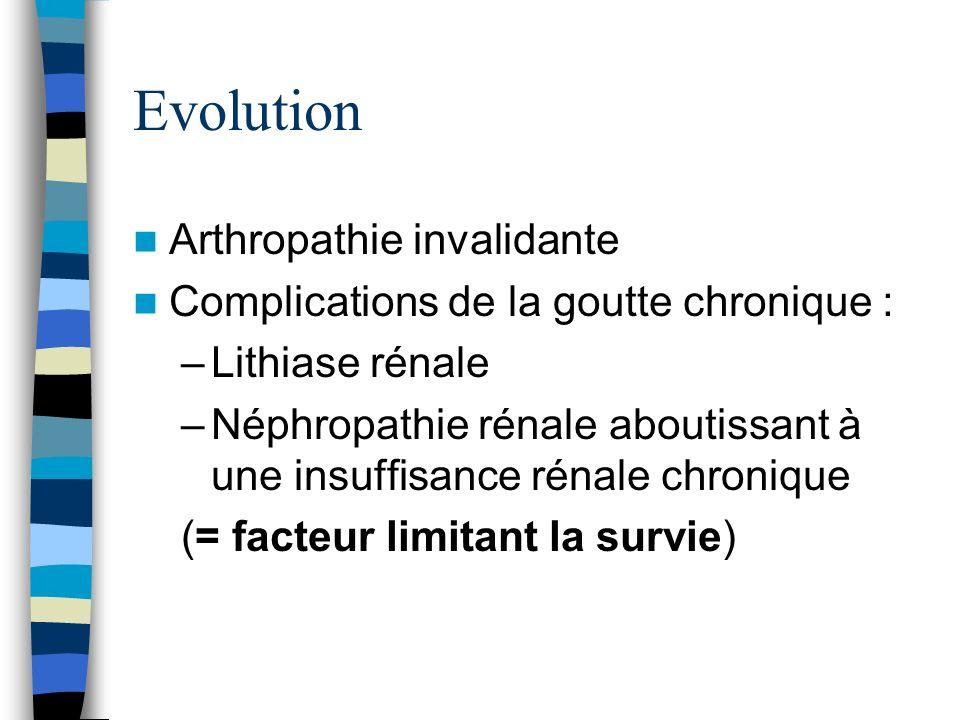 Evolution Arthropathie invalidante Complications de la goutte chronique : –Lithiase rénale –Néphropathie rénale aboutissant à une insuffisance rénale