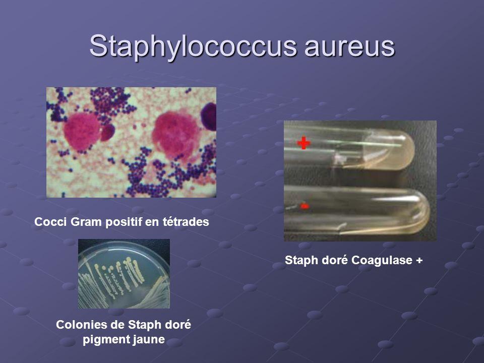 Staphylococcus aureus Cocci Gram positif en tétrades Colonies de Staph doré pigment jaune Staph doré Coagulase +
